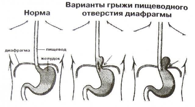Методы - иглоукалывание